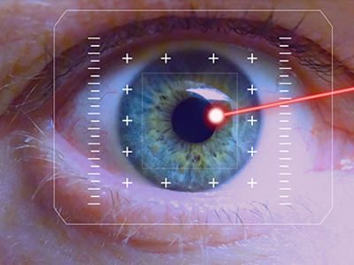 Laser eye correction at JRMC